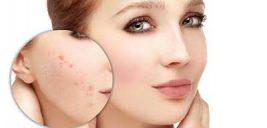 درمان جوش زدن پوست بعد از موم انداختن!
