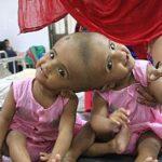 دختران دوقلو عجیب الخلقه اهل بنگلادش!