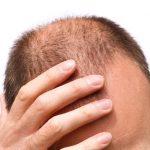 درمان ریزش مو در مردان از چه راه هایی امکان پذیر است؟