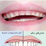 دندان قروچه در کودکان به چه علت است؟
