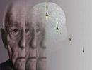 آیا دچار آلزایمر میشوید؟