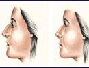 شخصیت شناسی براساس شکل و مدل بینی!