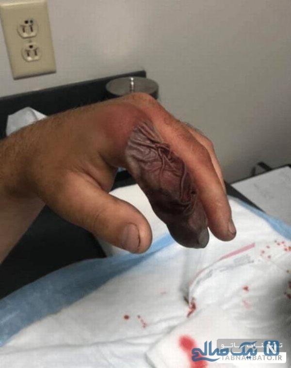 تغییر شکل انگشت دست