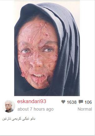 چهره سوخته نیکی کریمی با گریم عبدالله اسکندری!+عکس