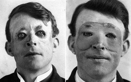 تصویر اولین انسانی که تحت عمل جراحی پلاستیک قرار گرفت