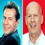 بازیگران مشهور طاس قبل از اینکه موهایشان بریزد(1)!