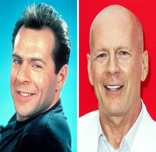 بازیگران مشهور طاس قبل از اینکه موهایشان بریزد(۱)!