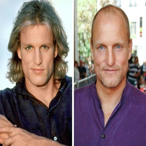 بازیگران معروف طاس قبل از اینکه موهایشان بریزد(۲)!