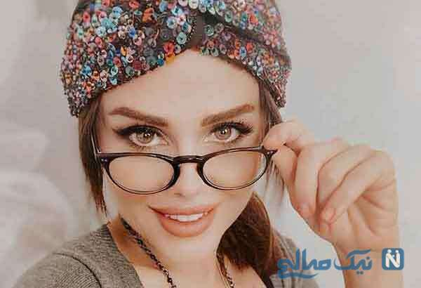 عکس های گونل زینالوا خواننده مشهور ترک با تغییر چهره باور نکردنی