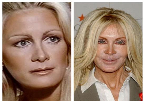 بازیگران هالیوودی قبل و بعد از عمل + تصاویر