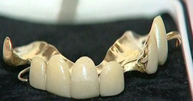 چرچیل سیاستمدار بریتانیایی و مزایده دندانهای مصنوعی وی!+تصاویر