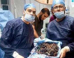 معده زن مصری جراحان کشورش را متعجب کرد!+تصاویر