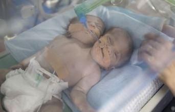 زایمان نوزادی با یک بدن و دو سر در فلسطین!+تصاویر
