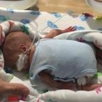 نوزاد نجات یافته از مرگ که به اندازه کف دست می باشد!+تصاویر