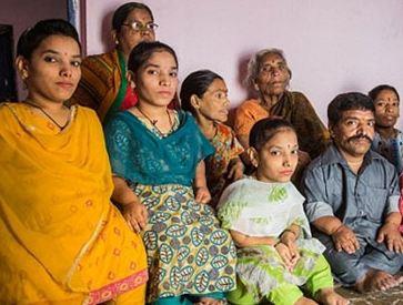 اختلال ژنتیکی آکندروپلازی که این خانواده هندی به آن دچار هستند!+تصاویر