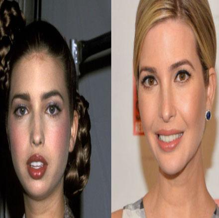 ایوانکا ترامپ قبل از جراحی زیبایی چه شکلی بوده است؟!