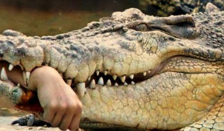 حمله تمساح به دختربچه ۱۰ ساله و نجات معجزه آسای وی!