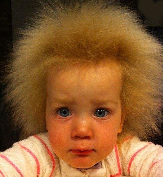 دختربچه هفت ساله که موهای شانه نشدنی دارد!!