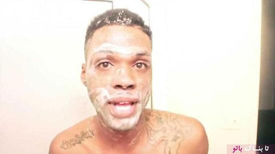 سفید شدن یک سیاه پوست