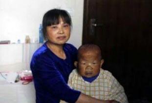 مردی که از سن حدود ۲ سالگی رشدش متوقف شده است!