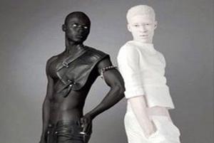 روشن ترین و تیره ترین رنگ پوست در دنیای مدلینگ!