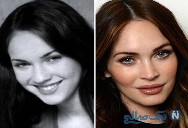 جراحی زیبایی بینی زنان قبل و بعد از عمل