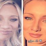 جراحی زیبایی گونه در زنان قبل و بعد از عمل جراحی