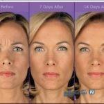 بوتاکس زیبایی در زنان قبل و بعد از انجام تزریق +تصاویر