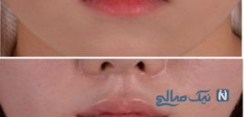 جراحی زیبایی لب ها در زنان قبل و بعد از عمل جراحی