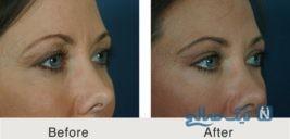 جراحی زیبایی پلک چشم زنان قبل و بعد از عمل