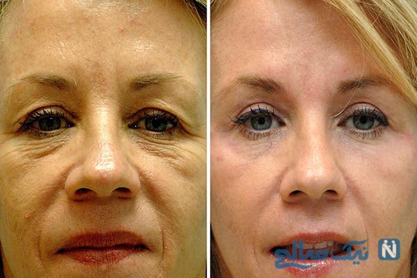 جراحی زیبایی پلک چشم