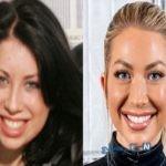 جراحی زیبایی چانه در زنان قبل و بعد از عمل جراحی