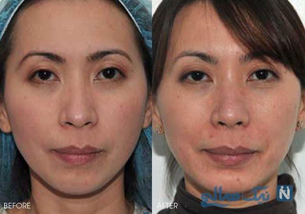 جراحی زیبایی چان
