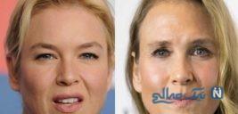 جراحی زیبایی چشم در زنان قبل و بعد عمل جراحی