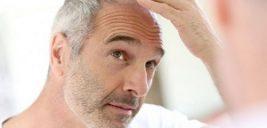 ریزش موی مردان و خطر ابتلا به سرطان