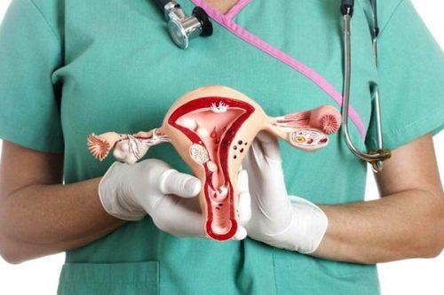 کیست تخمدان در زنان
