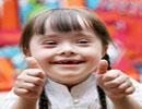 شایع ترین اختلالات ژنتیکی در کودکان را بشناسید