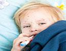 جوش زدن بدن اطفال و بیماری های ناشی از آن ها