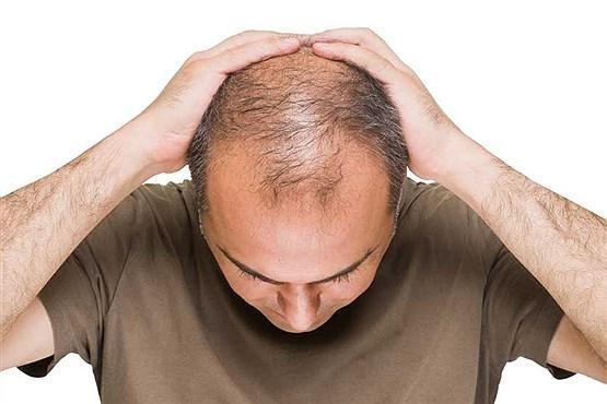 ریزش مو به دلیل افزایش قند، دیابت باعث طاسی می شود