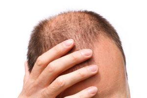 درمان ریزش مو در مردان