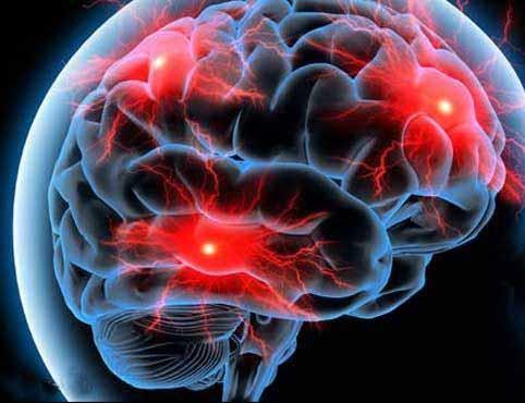 خونریزی مغزی در زنان سیگاری