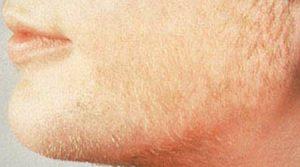نشانه های افزایش هورمونهای مردانه