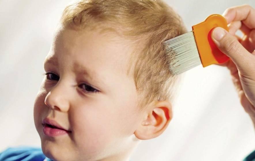 درمان خانگی شپش سر کودکان