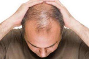 ناتوانی جنسی مردان با ریزش مو