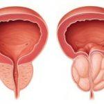 تاثیر بزرگی خوش خیم پروستات بر عملکرد جنسی مردان چیست؟