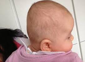 آیا صافی سر نوزاد می تواند خطرناک باشد؟