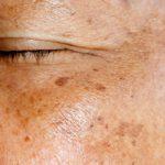 درمان ملاسما نوعی عارضه پوستی در مردان