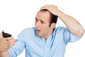 بررسی دلایل ریزش مو در مردان و درمان آن