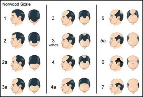 ریزش مو مردان
