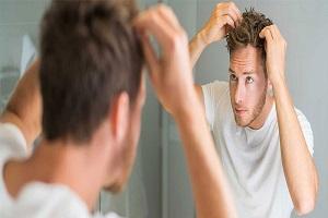 شایع تر بودن فرم شدید ریزش مو در مردان